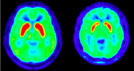 PET scan of a healthy patients brain <em>(left image)</em> compared with a PET scan of a patient with Huntington's disease, 3.6 years into the progression of the disease <em>(right image)</em>