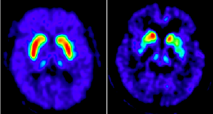 PET scans highlight the loss of dopamine storage capacity in Parkinson's disease.
